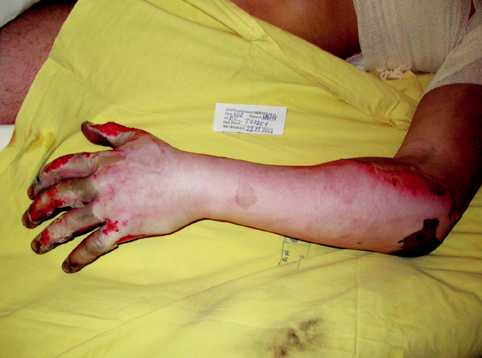 Fig. 4. Deep dermal burns of the left hand and lower arm at admission