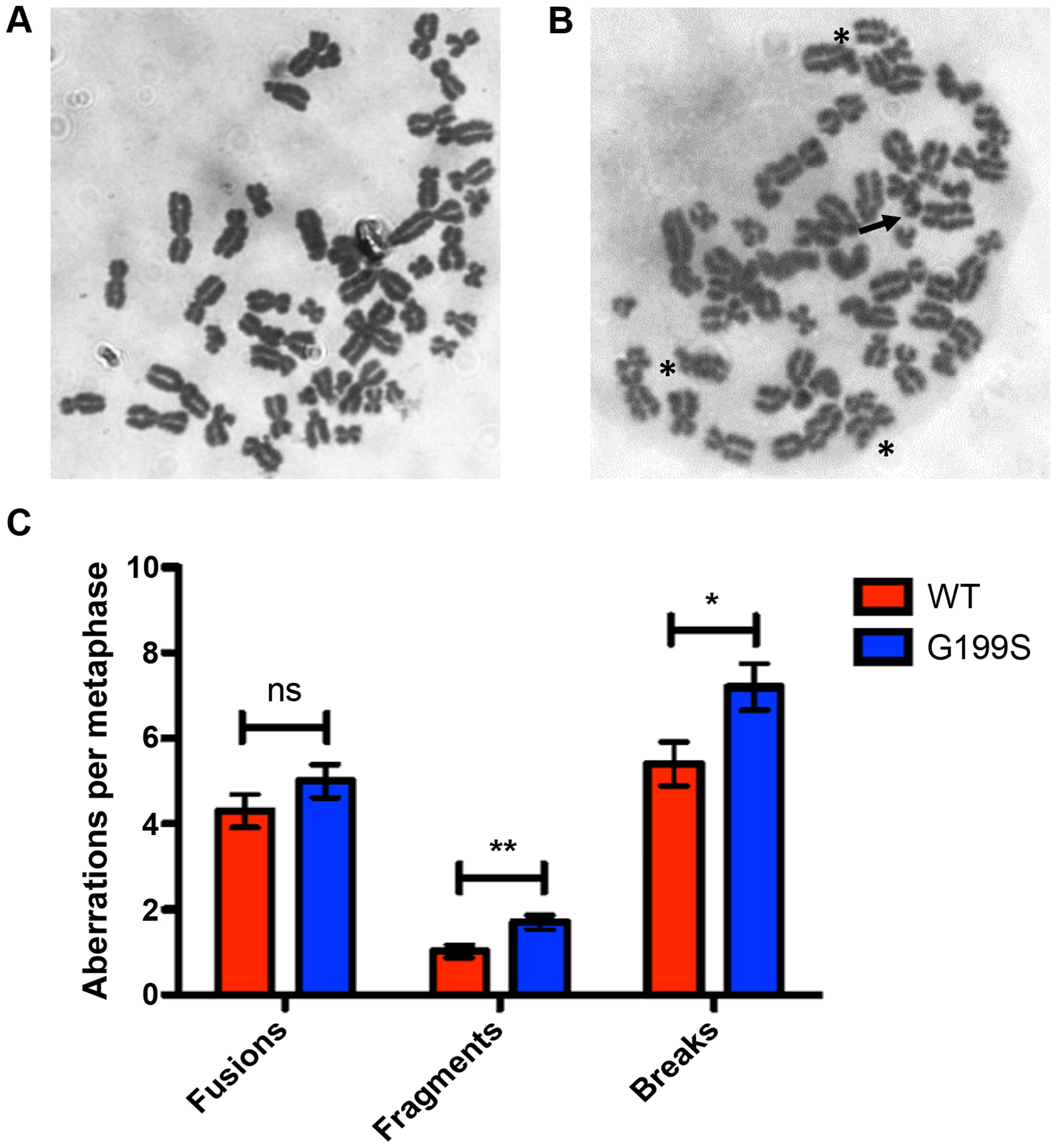 Expression of G199S leads to induction of chromosomal aberrations.