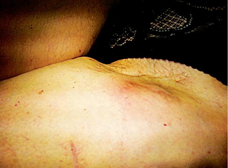 Podkožní noduly – kožní metastázy na levém stehně pacientky