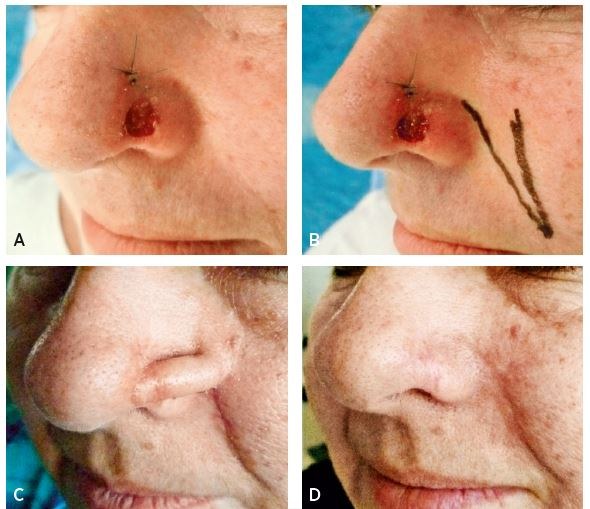 A–D. Sequence of nasal ala defect reconstruction with interpolation nasolabial flap