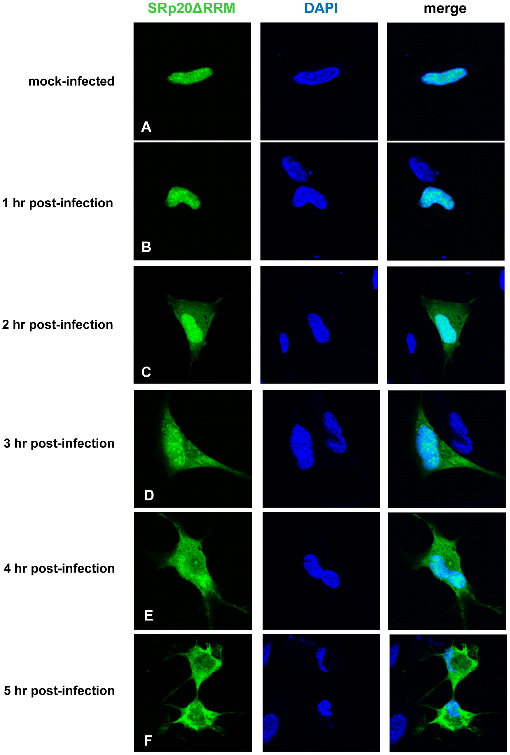 SRp20ΔRRM re-localization from the nucleus to the cytoplasm of SK-N-SH cells during poliovirus infection.