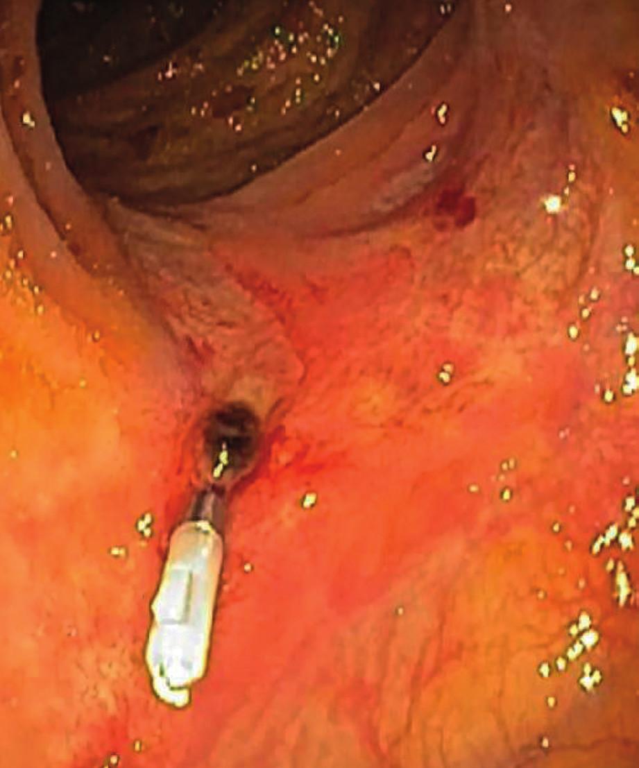 Zaklipovaná céva na spodině ulcerace v tlustém střevě