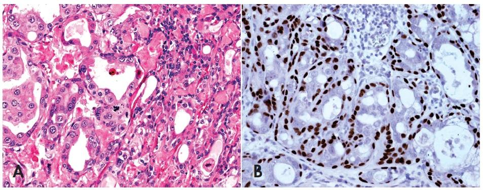 """Neinvazivní (in-situ) karcinom ex pleomorfní adenom (PA) neprorůstá přes okraje """" mateřského"""" PA, obsahuje atypie, mitózy a vysokou proliferační aktivitu výhradně v luminální duktální vrstvě původního PA se zachovanou intaktní myoepiteliální vrstvou (A), HE, 400x. Imunohistochemická reakce s p63 je pozitivní v abluminální vrstvě původních nenádorových myoepitelií (B), 400x."""
