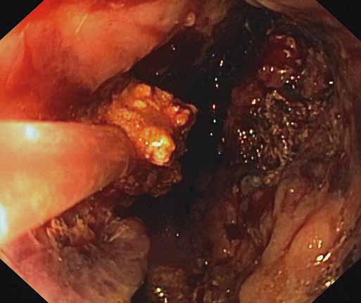 Endoskopická nekrektómia pomocou Dormia košíka. Fig. 3. Endoscopic necrectomy using a Dormia basket.