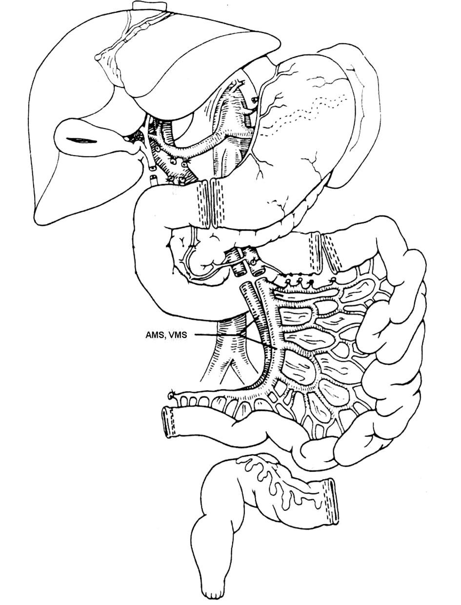 Schéma odběru štěpu tenkého střeva Pic. 1. The small intestine graft collection – A scheme AMS, VMS – a., v. mesenteria superior