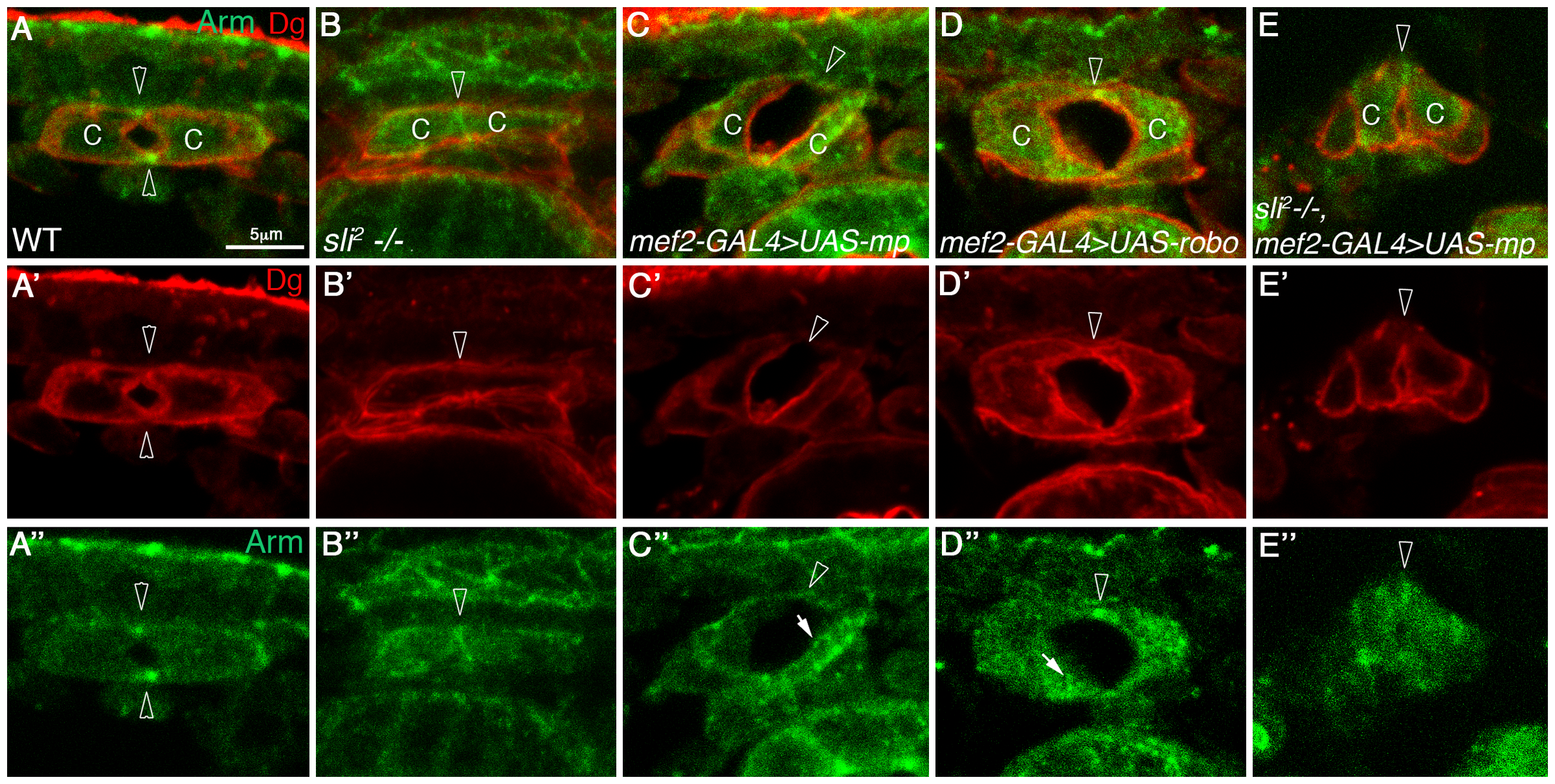 Mp activity in cardioblasts depends on Slit.