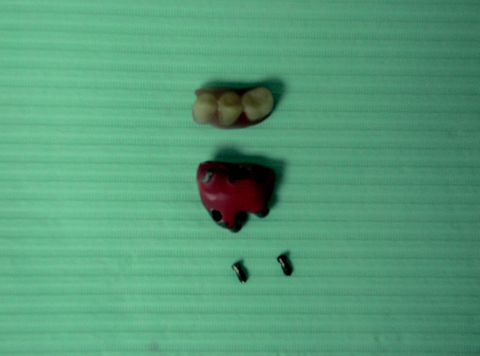 Podmíněně snímatelná zubní náhrada (rozložená)