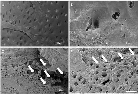 Cell behavior on bovine dentin. Scanning electron microscopic images show the bovine dentin surface orientated migration of outgrown pulp sphere cells (a) and the vortical ingrowth into the dentinal tubules as well as the covering of the tubular walls by these cells (b). Multilayered cell formations with cellular emulation of three-dimensional dentin structures could be detected in the multi layered outgrowth area adjacent to a sphere (white arrows in Figure 6c). The white arrows in figure (d) denote the fibrillar dentin tissue-like structure over numerous cell layers (black arrow).