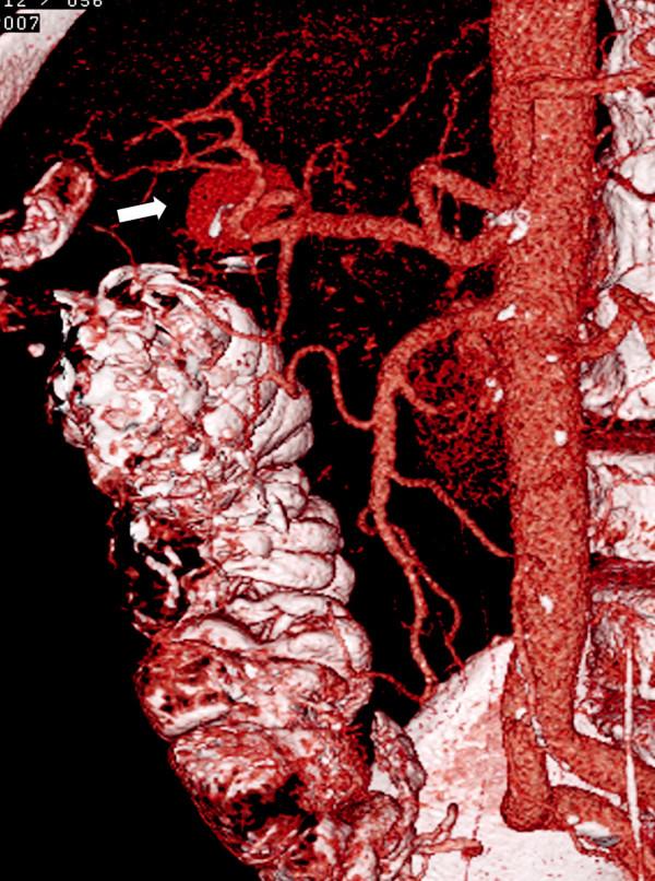 CT angiografie, 1. rekonstrukce – v horní části je patrná pseudovýduť arteria hepatica dextra (označeno šipkou) Fig. 1. CT angiography, 1st reconstruction – proximally, a pseudoaneurysm of the right hepatic artery is detectable (marked with arrow)