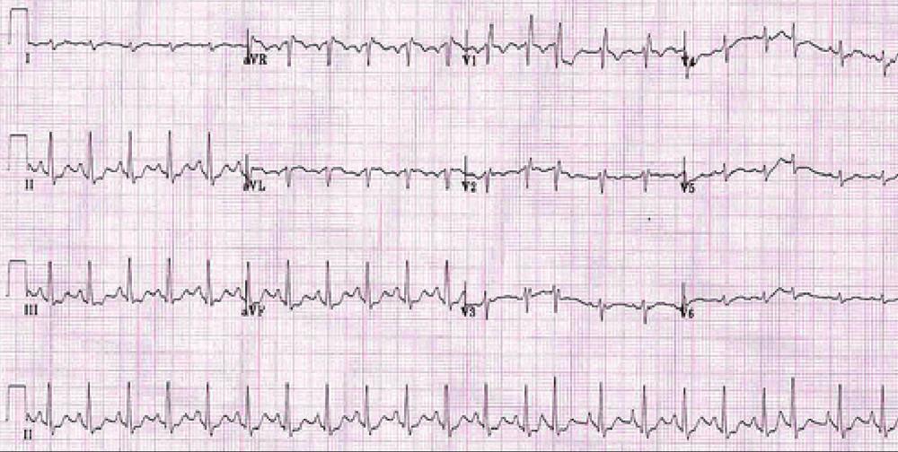 EKG u nemocného s CHOPN: P pulmonale, blok pravého Tawarova raménka, hypertrofie pravé komory a ojedinělá supraventrikulární extrasystola.