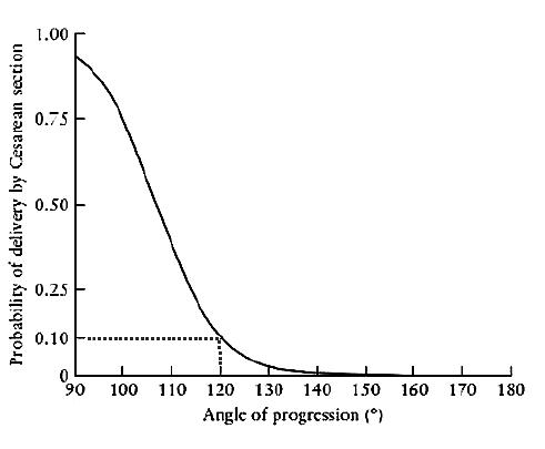 Závislost pravděpodobnosti provedení císařského řezu na hodnotě úhlu progrese (převzato od prof. Kalache [5])