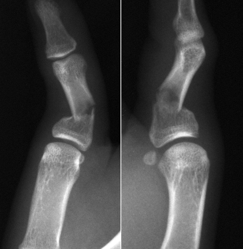 Obr. 4a a Obr. 4b. Tříštivá zlomenina prvního článku palce u adolescenta