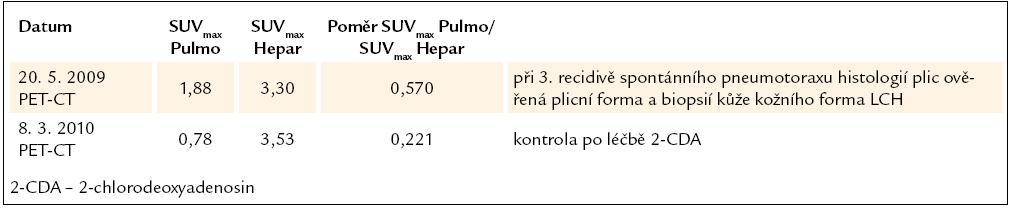 Vývoj plicní aktivity při PET-CT vyšetření u 4. pacienta, nar. 1969.