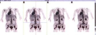 Celotělový PET s nálezem generalizovaného tumoru plic a mediastina s metastázami do skeletu.
