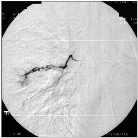 Stejná pacientka jako na obr. 2. Při následné superselektivní mikrokatétrové angiografii nalezen vpravo i arterio-arteriální zkrat.