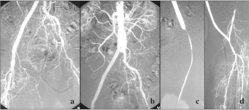 1 a, b. Uzáver ľavého ramena aortobifemorálneho bypasu a femoropopliteálneho distálneho bypasu s vena saphena magna našitého end to end na ľavé rameno aortobifemorálneho bypasu. Pravé rameno voľne priechodné. Indikovaná pulzná sprejová trombolýza. Obr. 1 c. Trombolýza odhaľuje nitkovitú stenózu v oblasti end to end anastomózy žily a ľavého ramena Y bypasu, vykonaná PTA. Obr. 1 d. Zobrazená periférna časť bypasu a tepny predkolenia. Fig. 1a, b. Closure of the left branch of the aortobifemoral bypass with the vena saphena magna attached end- to- end to the left branch of the aortobifemoral bypass. The right branch remained unobstructed. Pulse- spray thrombolysis was indicated. Fig. 1c. The thrombolytic procedure reveals a fibre- size stenosis in the end- to- end vein and left bypass branch anastomosis region, PTA performed. Fig. 1d. Peripheral bypass and tibial artery depicted.