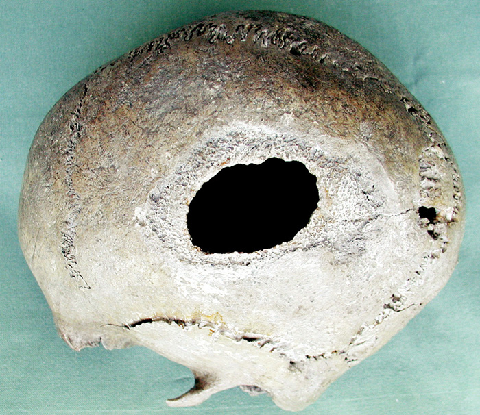 Fig. 5. Skull No. 2 from Chrabřec