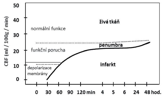 Vývoj mozkového infarktu v závislosti na poklesu mozkové perfuze. (Modifikováno z Ambler, Bauer, 2010.)