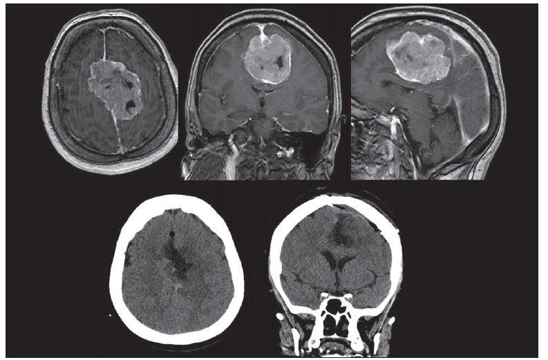 Meningeom falxu. Předoperační transverzální MR T1 s kontrastní látkou. Pooperační CT snímky. Resekce byla radikální včetně resekce falxu (origa).
