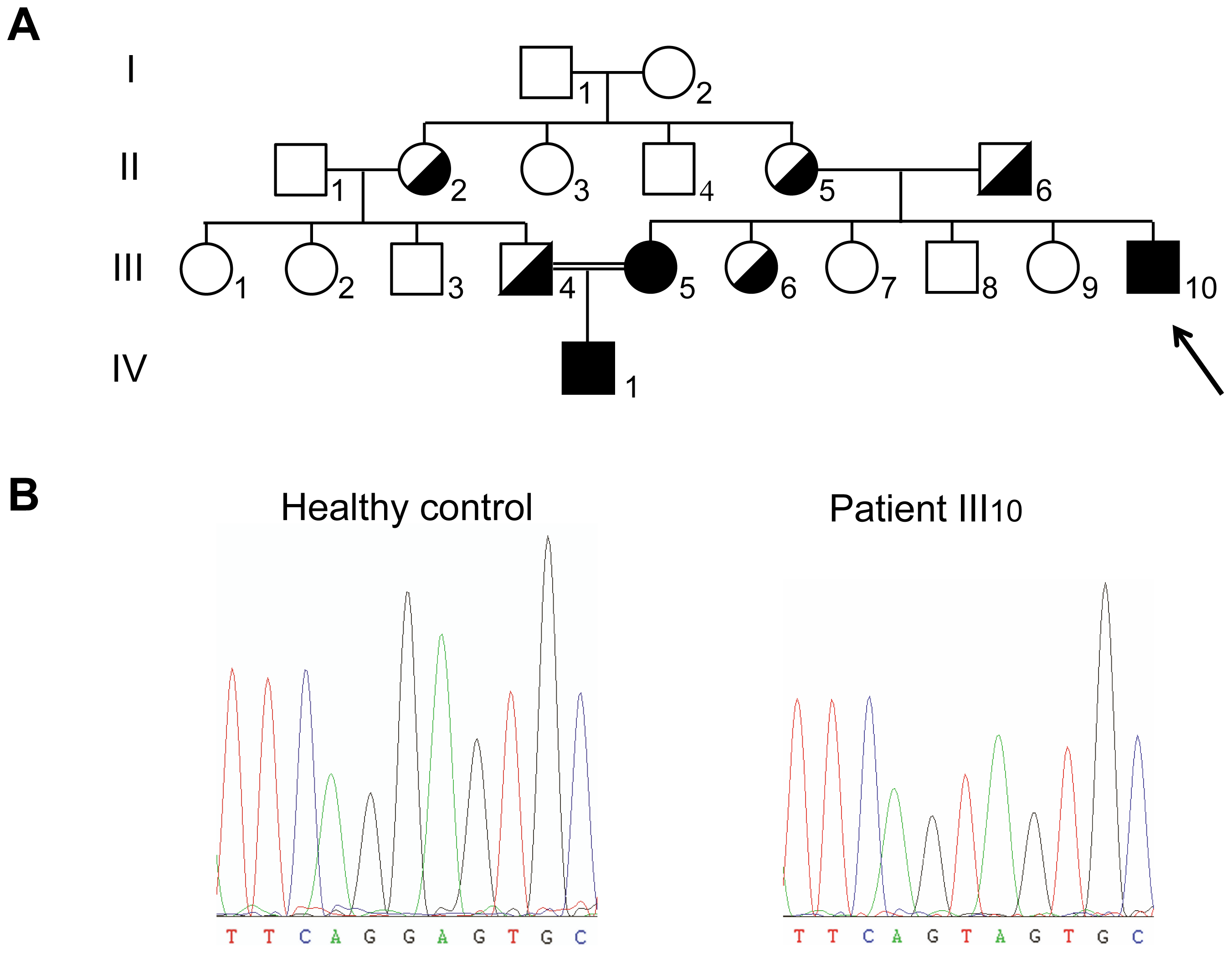 Pedigree and genotype of the patients.