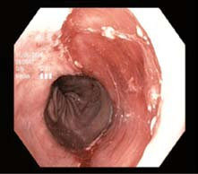 Spodina po endoskopické resekci.