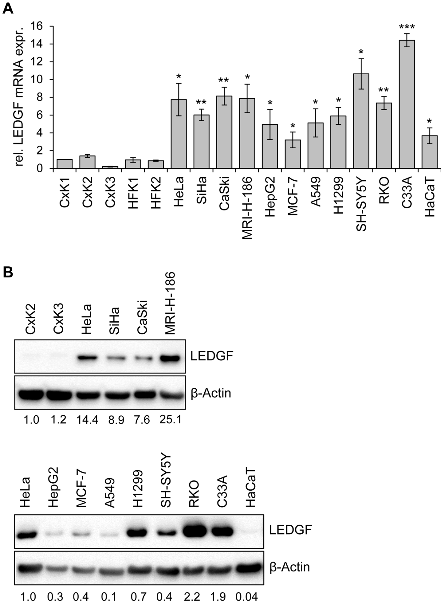 LEDGF expression in primary human keratinocytes and in HPV-positive and HPV-negative cell lines.