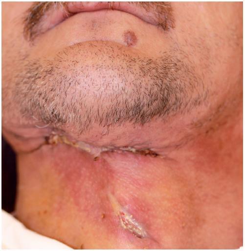 Klinický obraz rány před ukončením hospitalizace