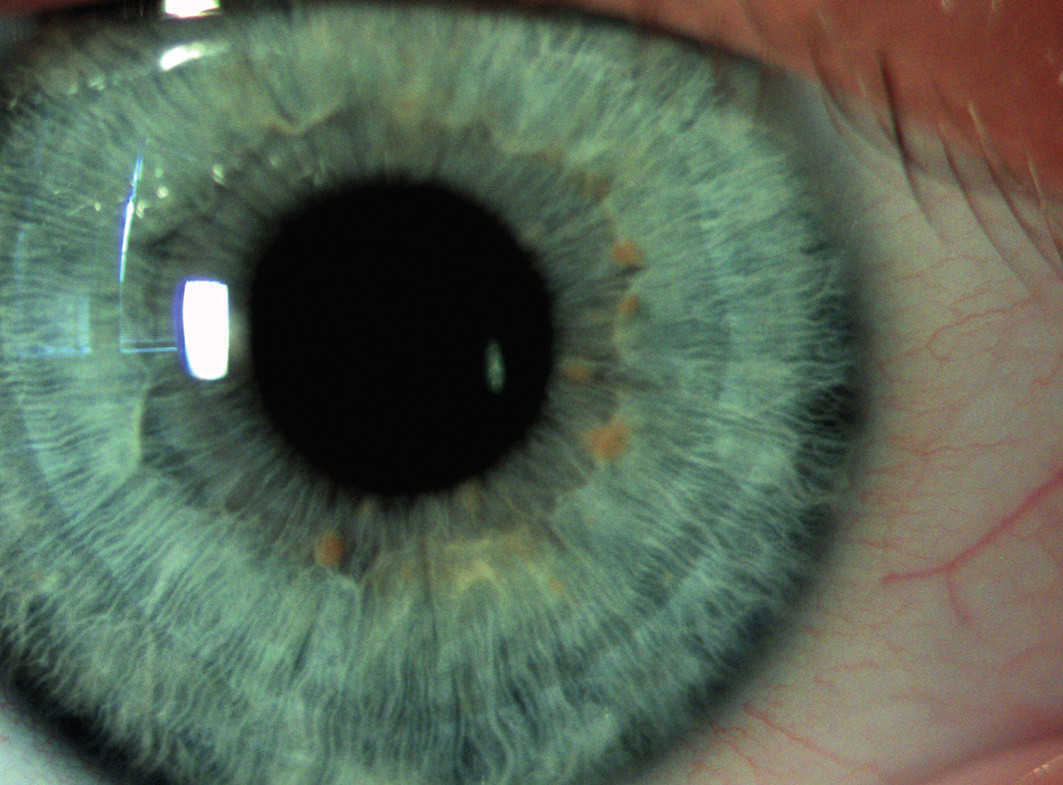 Obr. 6a. Lischovy noduly – hamartomy duhovky, foto ve štěrbinové lampě Na snímku mladá žena (14 let).