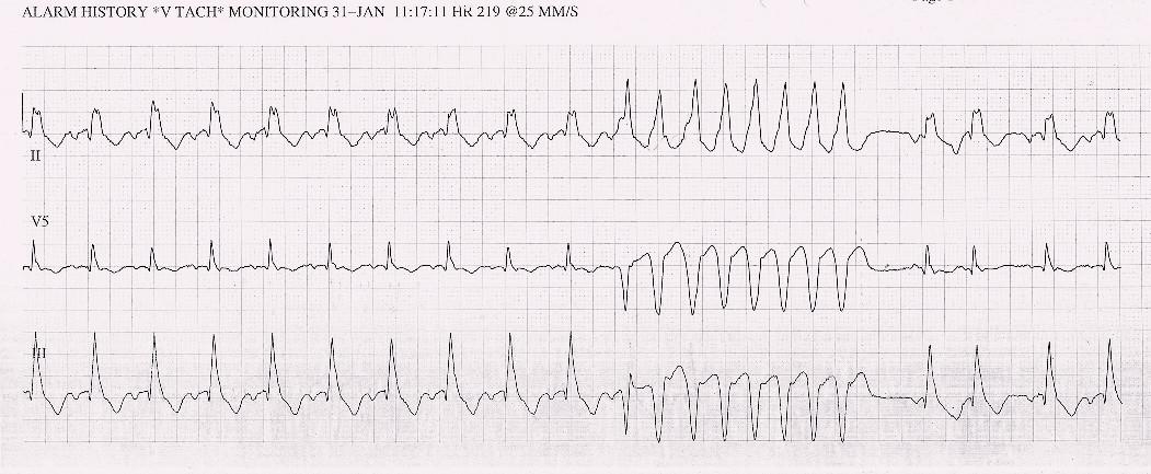 EKG – strip se záznamem nesetrvalé komorové tachykardie v roce 2013.