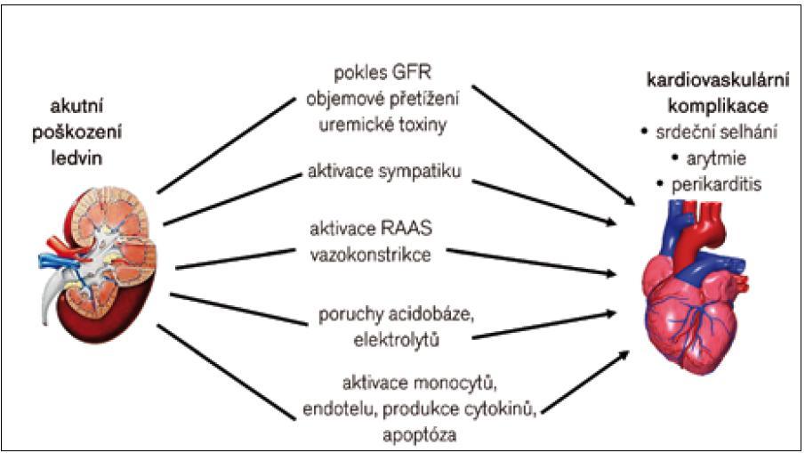 Patofyziologie akutních renokardiálních interakcí.