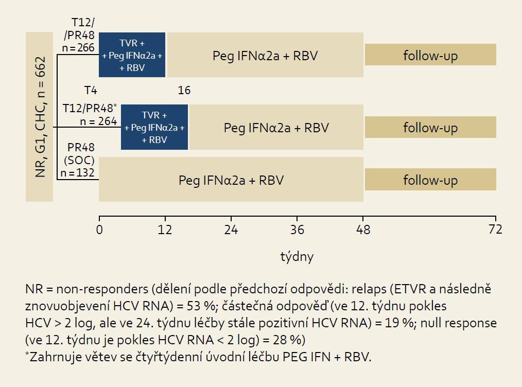 Schéma uspořádání studie REALI ZE. Fig. 10. REALIZE study design.