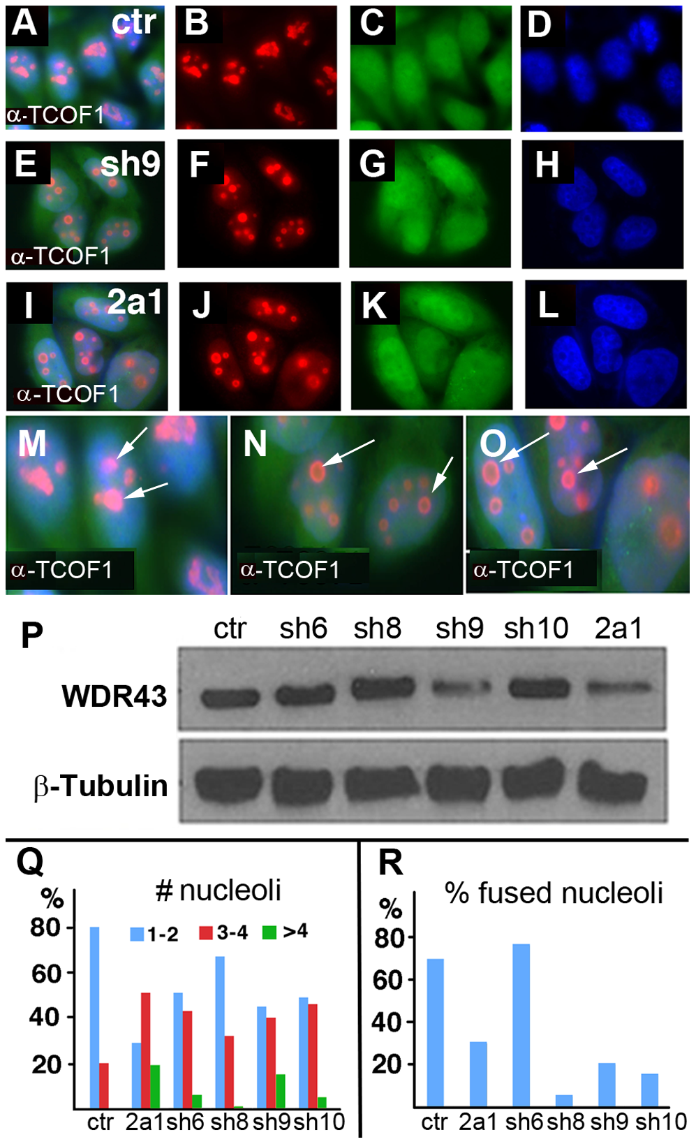 TCOF1 expression in stable <i>WDR43</i> shRNA cell lines.