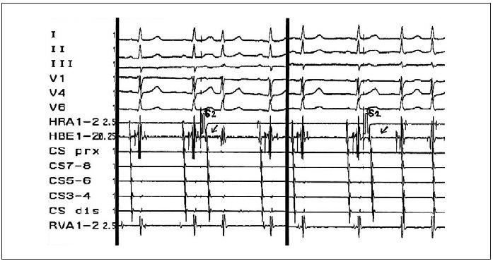 Ukázka znaku duality AV-vedení – skokovitého prodloužení intervalu AH při EFV.