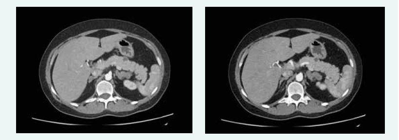 Kazuistika 5 – afunkční neuroendokrinní tumory slinivky (CT) (snímky v plném rozlišení naleznete v on-line verzi článku)