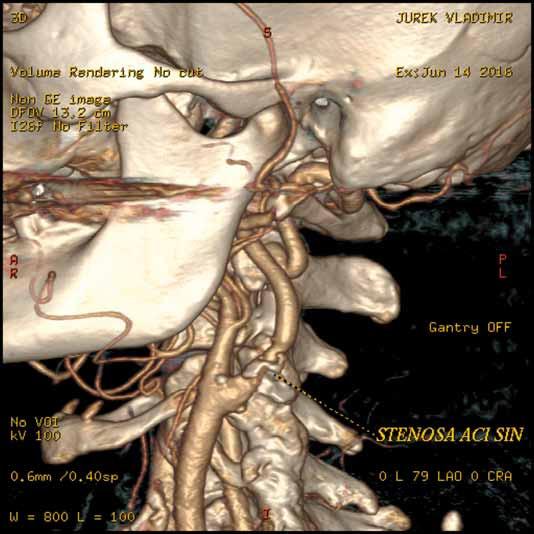 CT angiografie karotické tepny. Počítačové zpracování CT obrazu nazývané volume rendering, které zobrazuje stenózu levé vnitřní krkavice a její vztah k ostatním cévním a kostním strukturám.