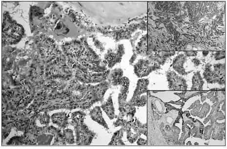 Papillary growth pattern of cPTC; ground glass nuclei of tumor cells are evident (HE, original magnification 200x). Upper right: Diffuse strong Gal3 expression in cPTC (original magnification 100x). Lower right: Diffuse focally strong expression of CK19 in cPTC (original magnification 100x)