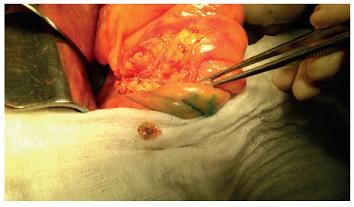 Odebraná sentinelová uzlina Fig. 4: Sentinel lymph node