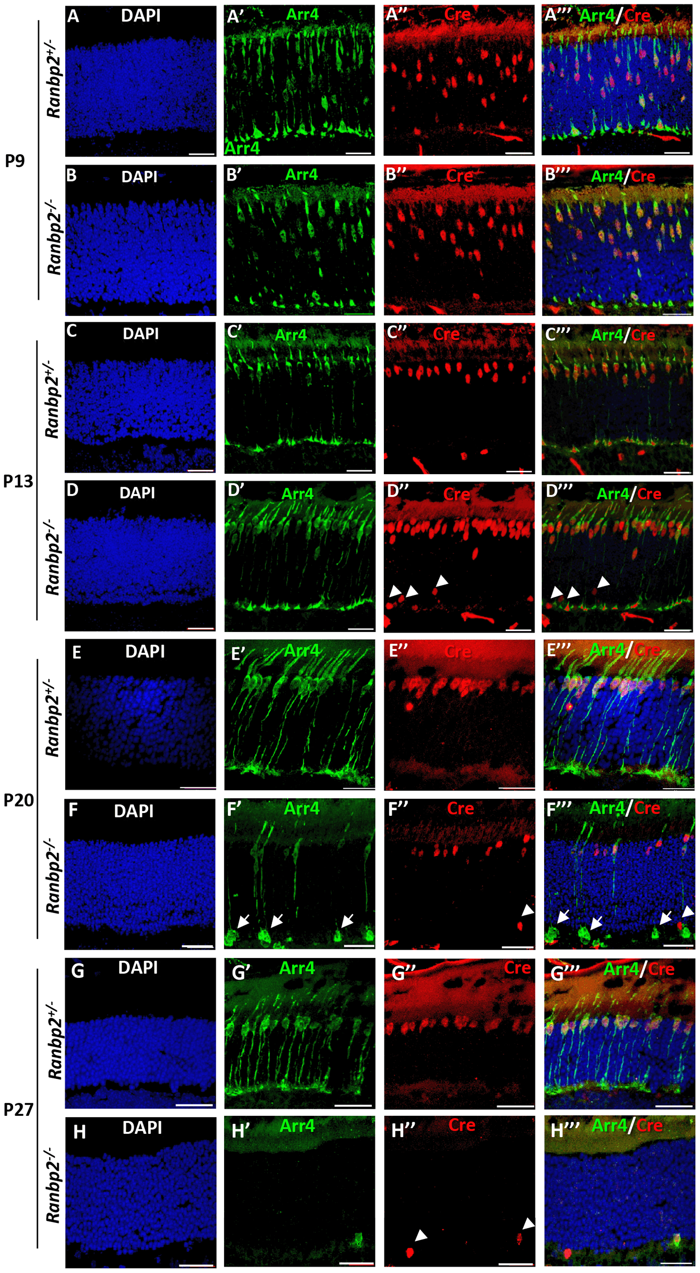 Temporal and morphological profile of degeneration of cone photoreceptors in <i>Ranbp2<sup>−/−</sup></i> mice.