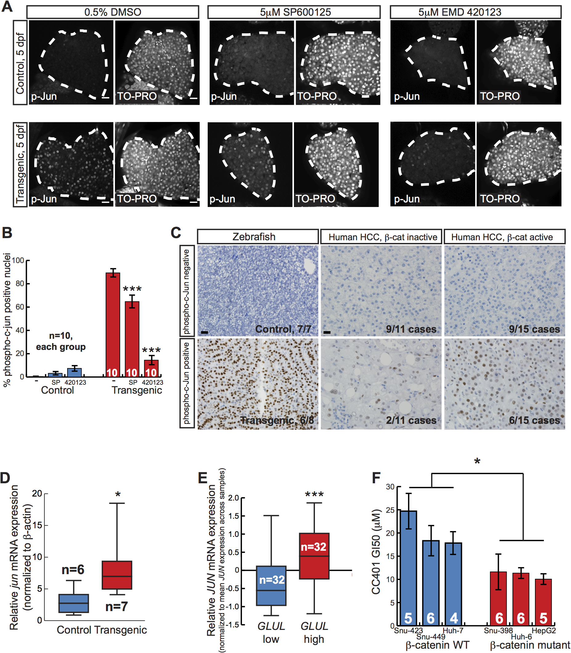 Activated β-catenin is associated with JNK pathway activation.