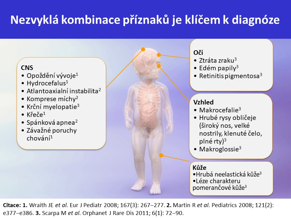 Mukopolysacharidóza typ II – Hunterův syndrom - 14