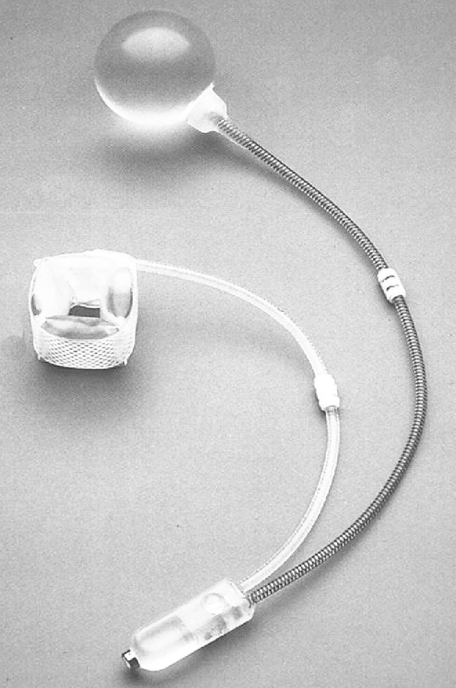 Umělý svěrač anu Pic. 1. Artificial of the anus sphincter