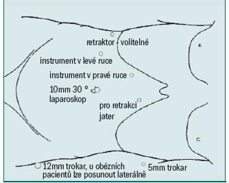 Schéma 2. Schematický diagram zobrazující umístění laparoskopického portu při pravostranné transperitoneální adrenalektomii.