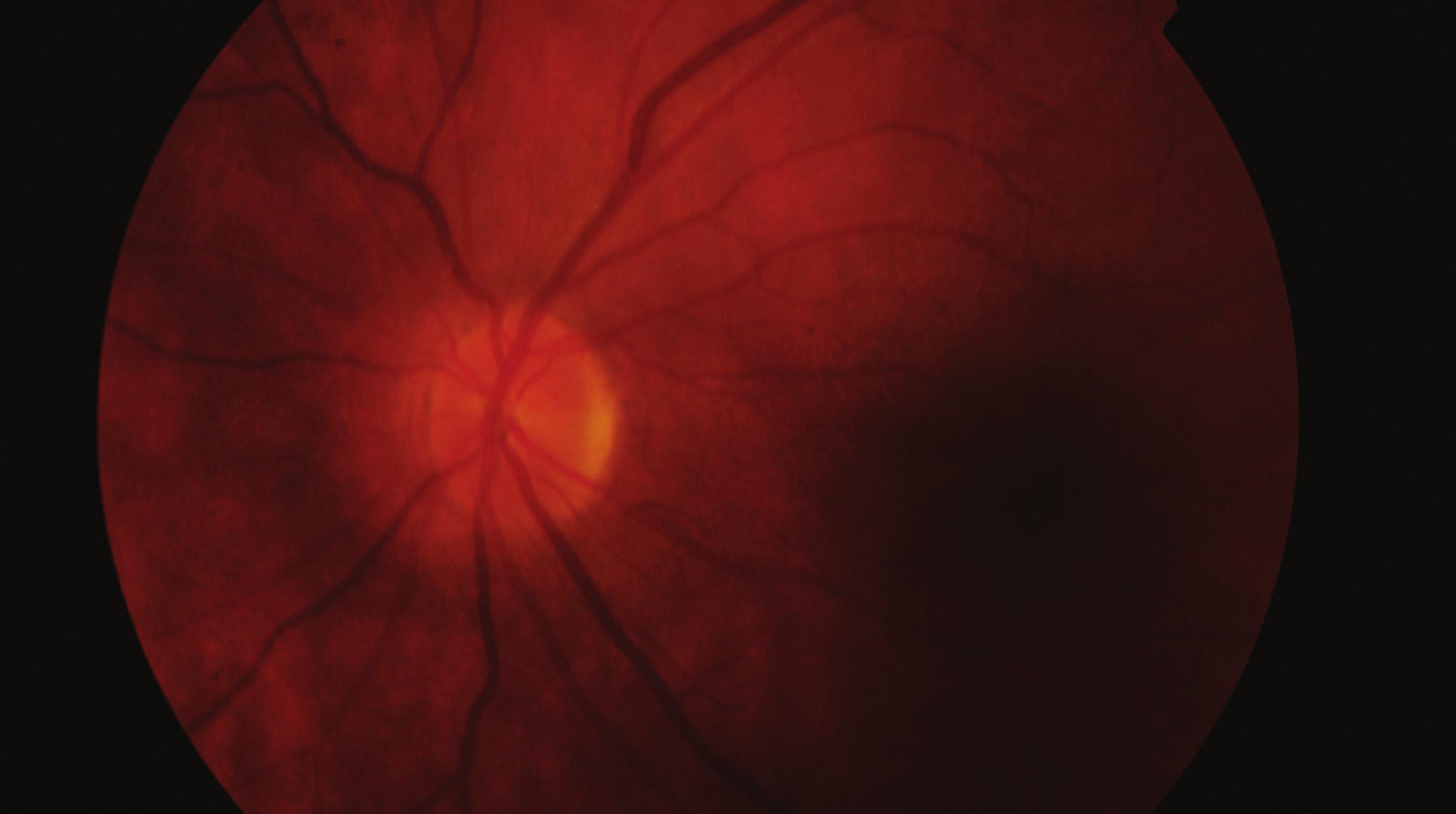 Fundus levého oka 5 měsíců po vzniku pretrombotického stavu