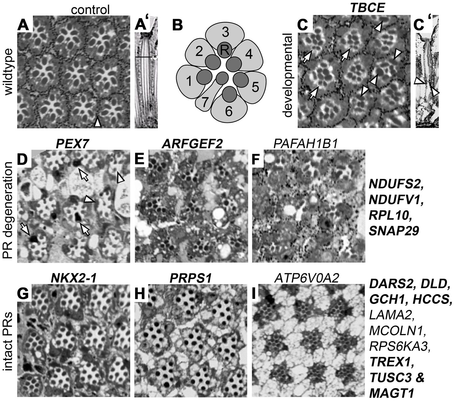 Histological analysis of <i>Drosophila</i> ID gene knockdown eyes with ERG defects.