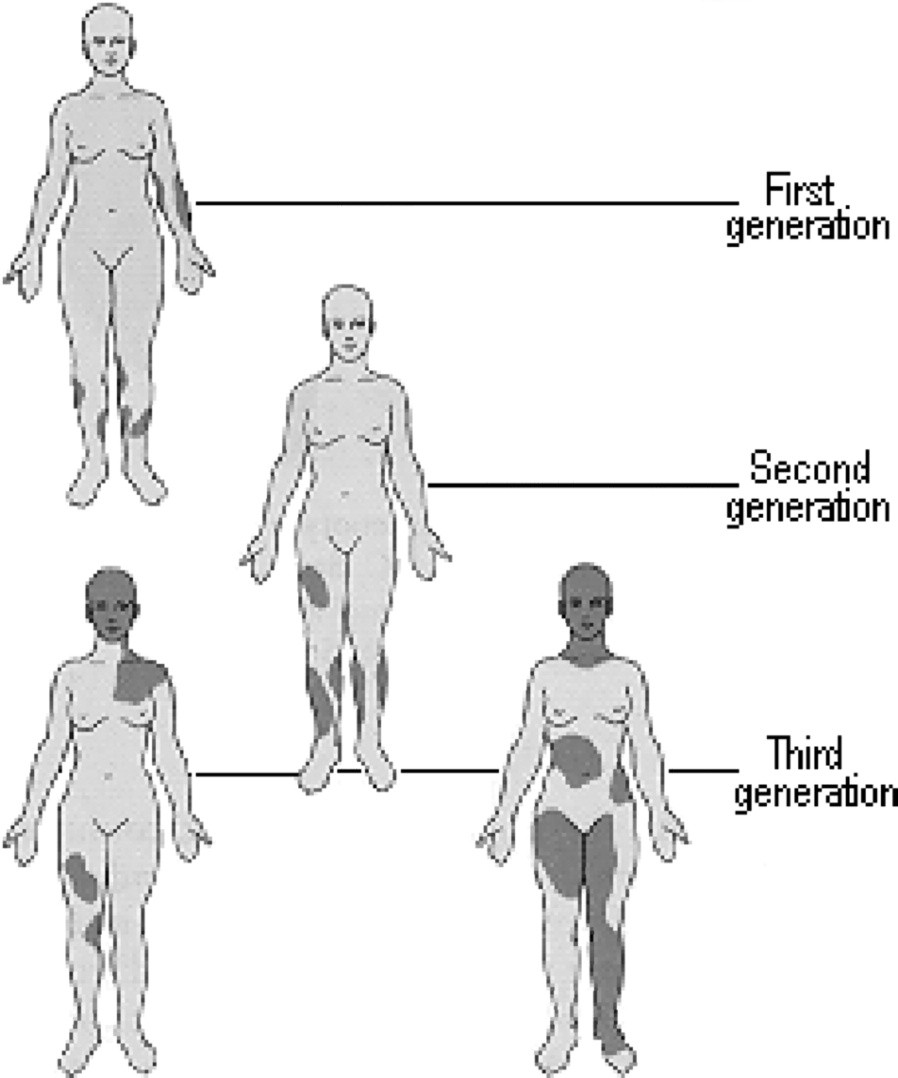 Fenotypová variabilita v důsledku lyonizace.