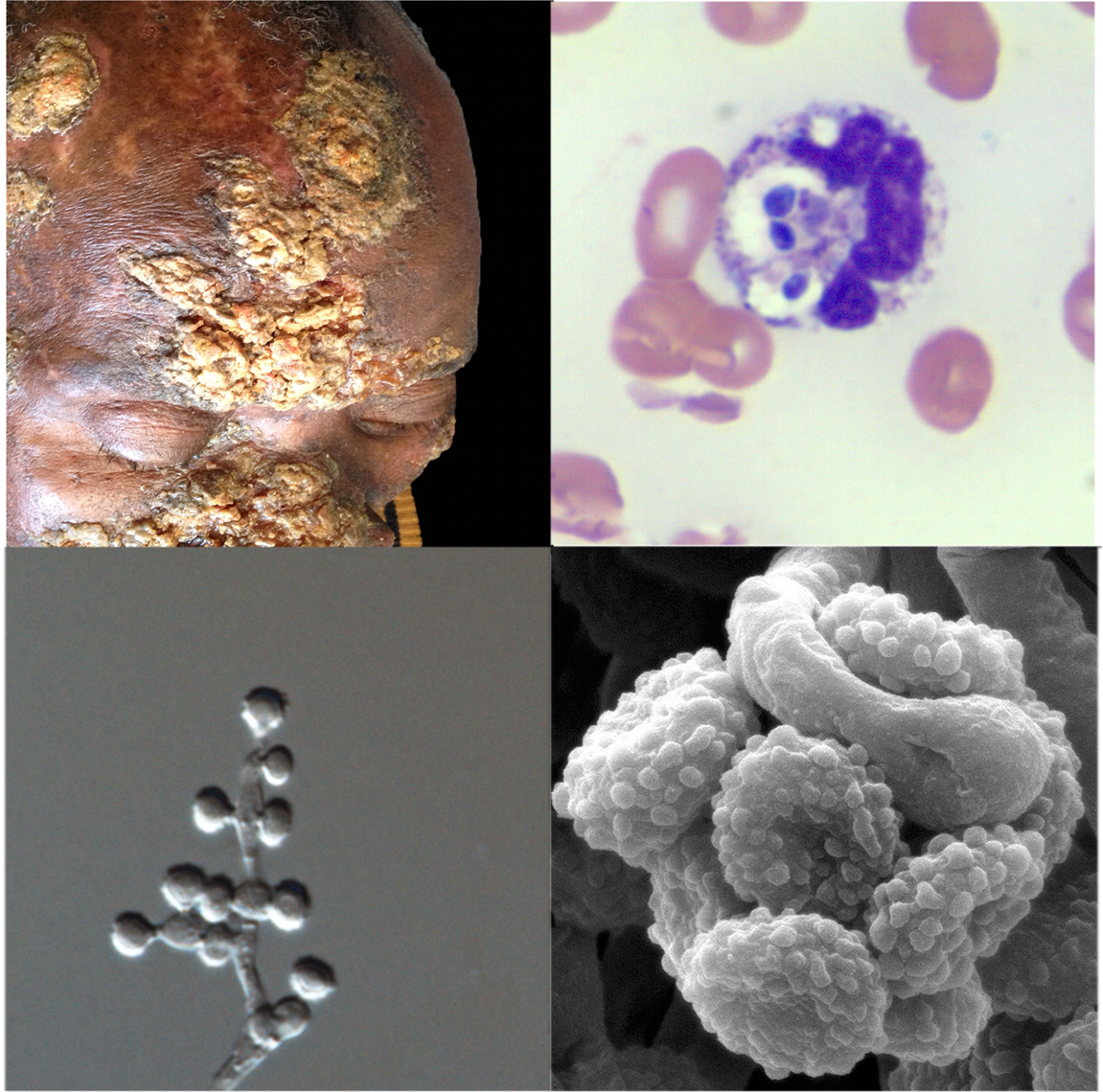 Clinical, pathological, and mycological facets of a novel <i>Emmonsia</i>-like fungus reported from South Africa.