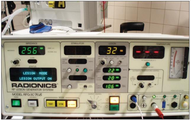 Radiofrekvenční generátor Radionics RFG-3C Plus, Radionics Inc., USA.