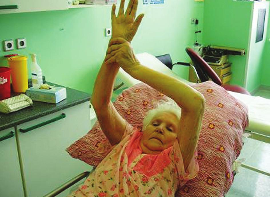 Pacientka 7 týdnů od operace Fig. 4. The patient, postoperative week 7