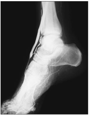 Intra-operační angiografie: zobrazuje se distální úsek pedálního bypassu s průchodnou anastomózou a výtokem do arteria dorsalis pedis. Jde o pacienta s diabetickou gangrénou nohy a neúspěšném pokusu o PTA bércových tepen. Fig. 1. Intra-operative angiogram of the distal part of a pedal bypass with patent anastomosis and outflow to the dorsal pedal artery in a patient with diabetic foot in whom crural artery PTA had failed