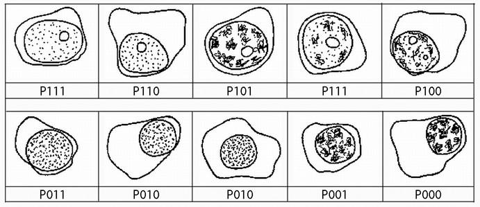 Přehledná zastoupení plazmatických buněk podtypů podle definice algoritmu systému plazmatická buňka, první číslo představuje přítomnost (1) nebo absenci (0) jadérka, druhé číslo představuje přítomnost (1) nebo nepřítomnost (0) blastického chromatinu, poslední číslo představuje přítomnost (1) nebo nepřítomnost (0) N: C poměru < 0,6.